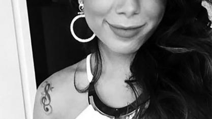 FAMOSOS - Anitta fez nova plástica? Cantora posta foto e fãs suspeitam