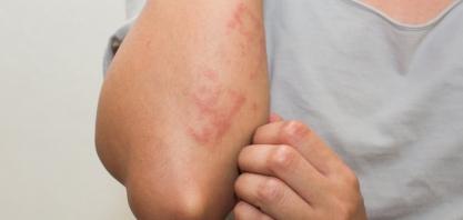 Quadro incomum, alergia pode ser desencadeada pelo exercício físico