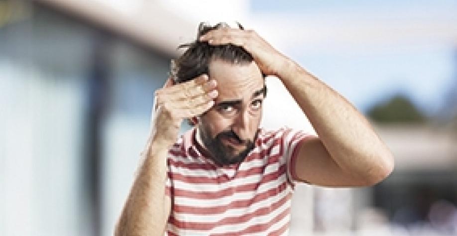 Covid-19 pode provocar queda de cabelo após período de infecção
